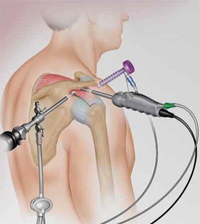 Операция на плечевой сустав купить ортез на коленный сустав в иркутске